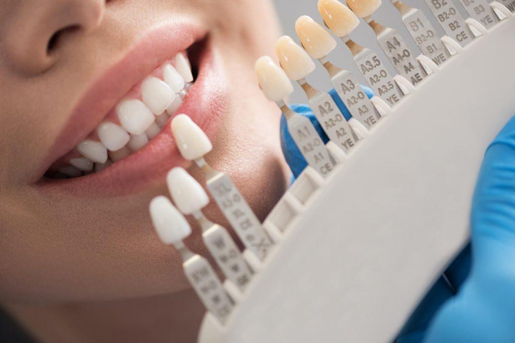 Zahnbehandlungen